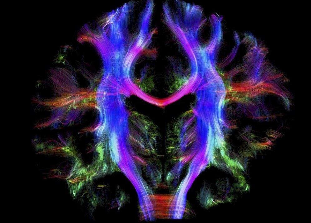 Проводка человеческого мозга. Cпектральное изображение мозга здорового взрослого человека.